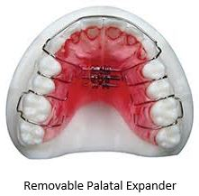 stony_brook_orthodontics_removable_palatal_expander