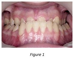 stony_brook_orthodontist_underbite